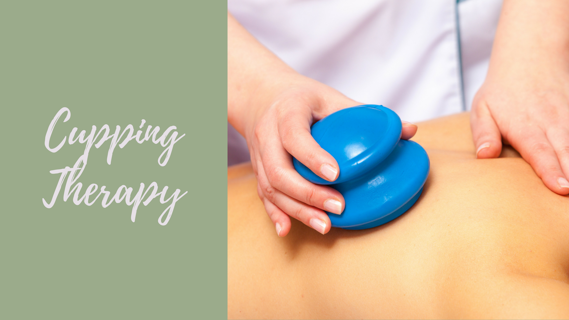 Cupping Therapy Des Moines WA